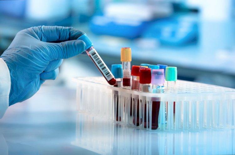 患者血液中的微生物DNA可能是癌症的明显征兆